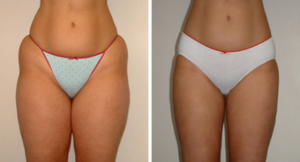 actual-patient-300x162 Liposuction Sacramento