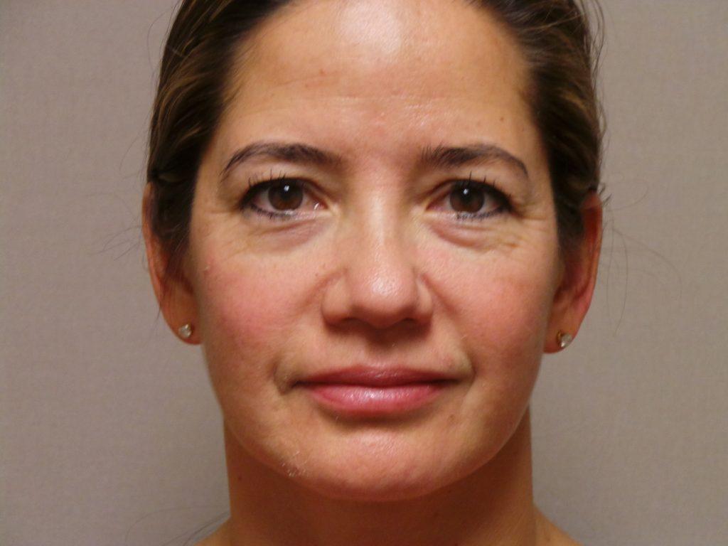 Eyelid Surgery Sacramento Amp Folsom Dr Mabourakh