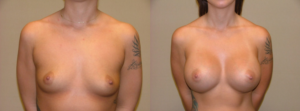 Breast-Augmentation-patient-of-Dr.-Mabourakh-300x111 Should I Get a Breast Augmentation or a Breast Lift?