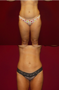 Mabourakh-Liposuctionn-Patient--198x300 What to Know Before Liposuction