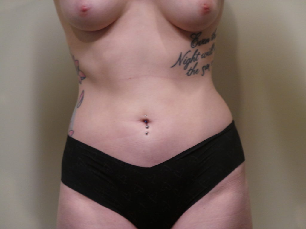 Liposuction Sacramento Folsom Dr Mabourakh