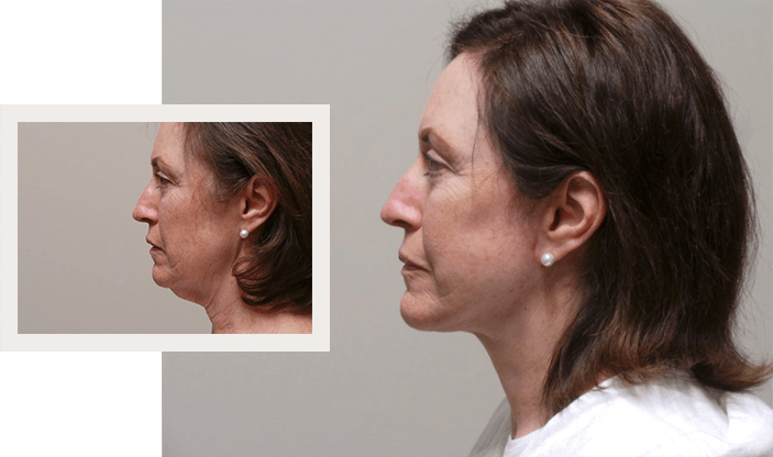 Before and After - Facelift Surgery