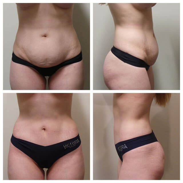 Before and After - Tummy Tuck Surgery