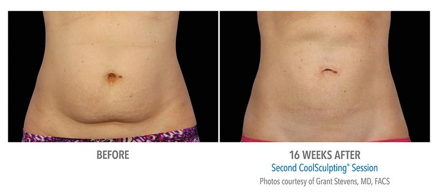 CoolSculpting® Before and After - Abdomen