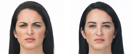 Before & After BOTOX®/Dysport Treatment