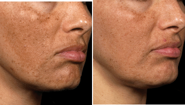Before and After laser patient