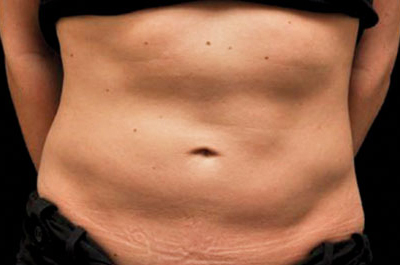 Coolsculpting® Patient Before