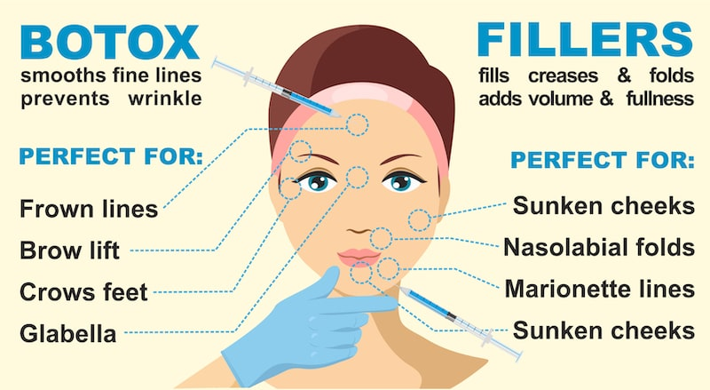 Illustration showing the different treatment areas for BOTOX and fillers