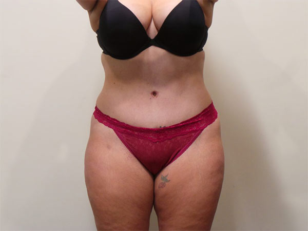 Drainless Tummy Tuck (Abdominoplasty) Patient After