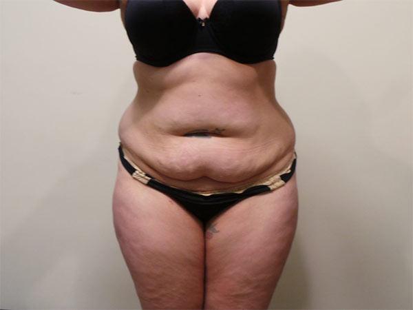Drainless Tummy Tuck (Abdominoplasty) Patient Before