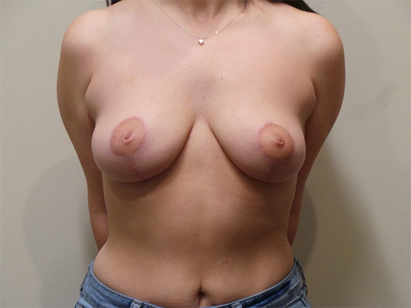 Breast Lift Patient After