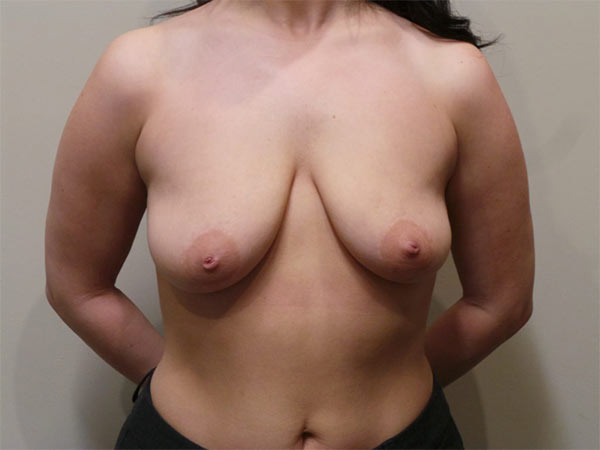 Breast Lift Patient Before