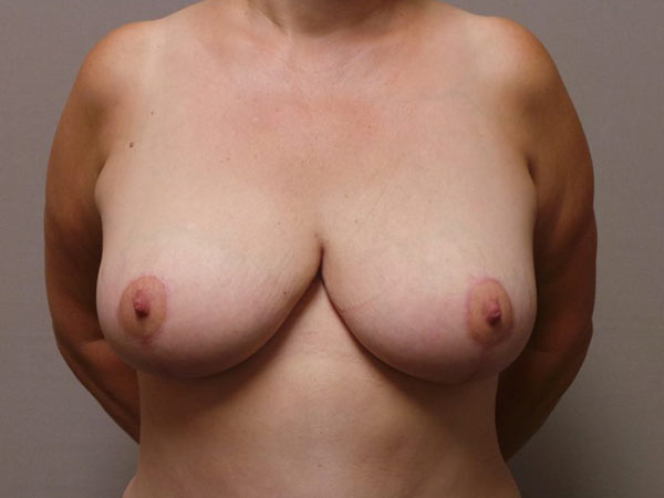Breast Reduction Surgery in Sacramento Patient After