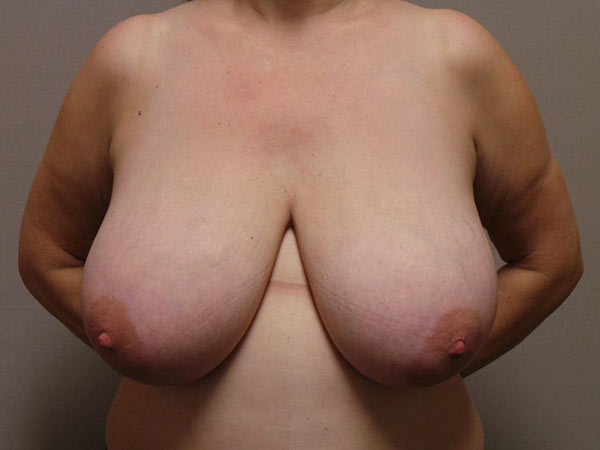 Breast Reduction Surgery in Sacramento Patient Before