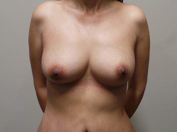 Fat Transfer Breast Augmentation Patient After