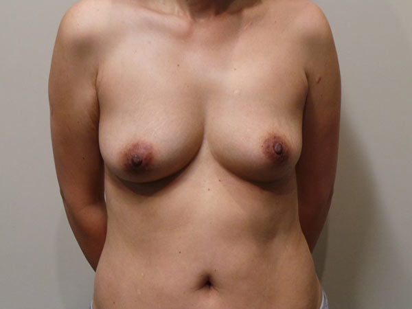 Fat Transfer Breast Augmentation Patient Before