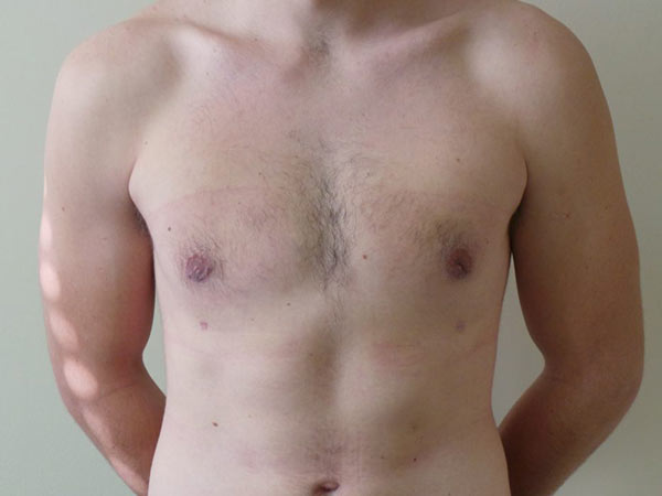 Male Breast Reduction Surgery Patient After