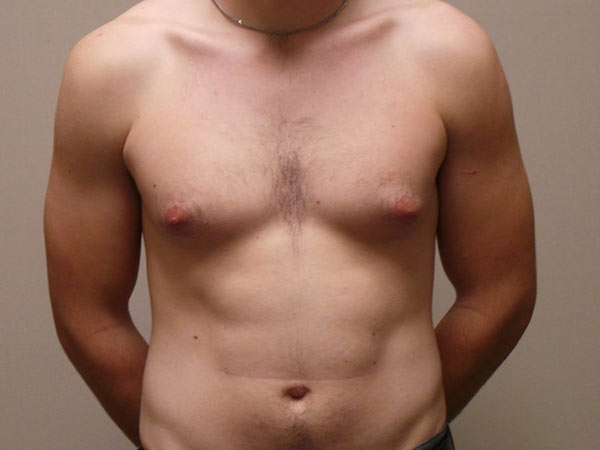 Male Breast Reduction Surgery Patient Before